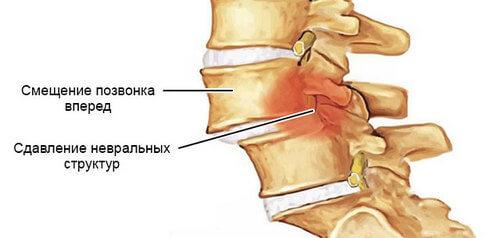 головокружение боль в пояснице головная боль